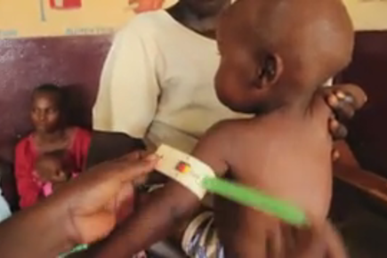 """Malnutrition's """"Perfect Storm"""" in Central African Republic"""